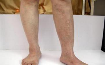 郑州白斑病患者提高免疫力有何妙招
