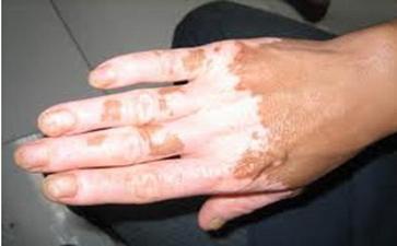 郑州白癜风患者生活中要怎么护理白斑
